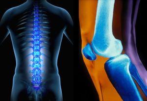 поражение суставов колена