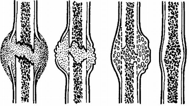образование костной мозоли