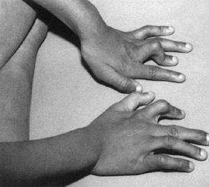 причины контрактуры пальцев
