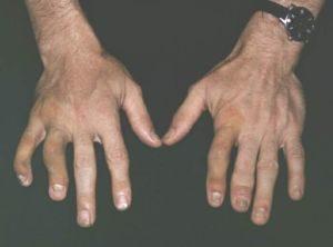 Асимметричный олигоартрит