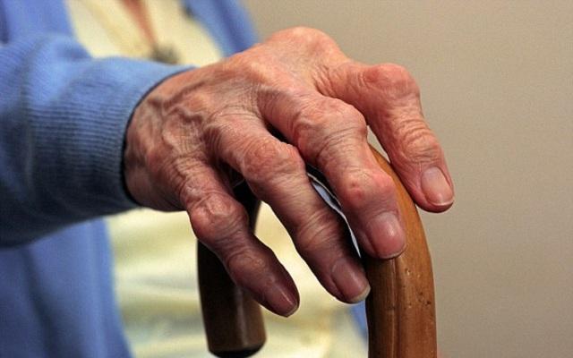 пациент с остеоартритом