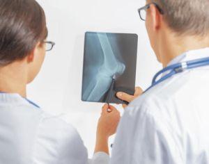 остеоартроз на рентгене