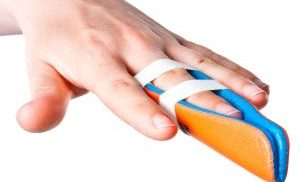 вывих пальца руки
