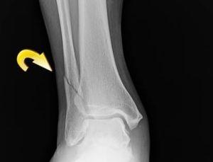 перелом на рентгене