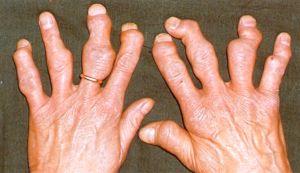 пораженные псориазом пальцы