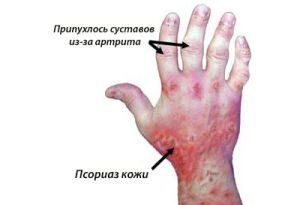 Симптомы псориатической артропатии