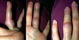 симптомы при вывихе пальца