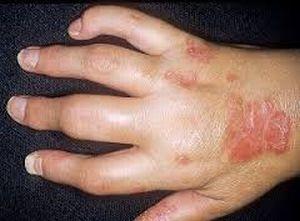 пальцы-сосиски