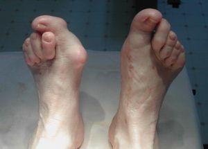 Вывих пальцев стопы
