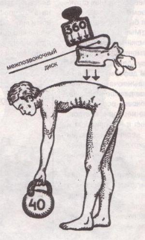 Хондроз поясничного отдела позвоночника лечение