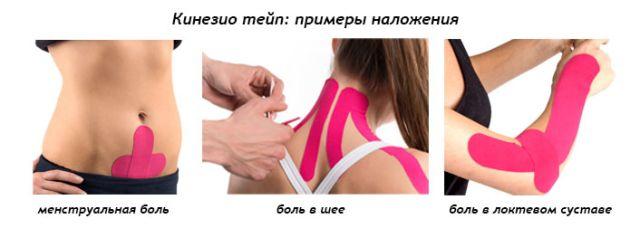 методы наложения кинезиотейпа