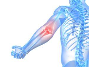 остеоартроз локтевого суства