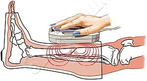 как применять прибор магнитотерапии