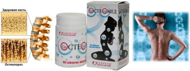 Остеомед при артрозе