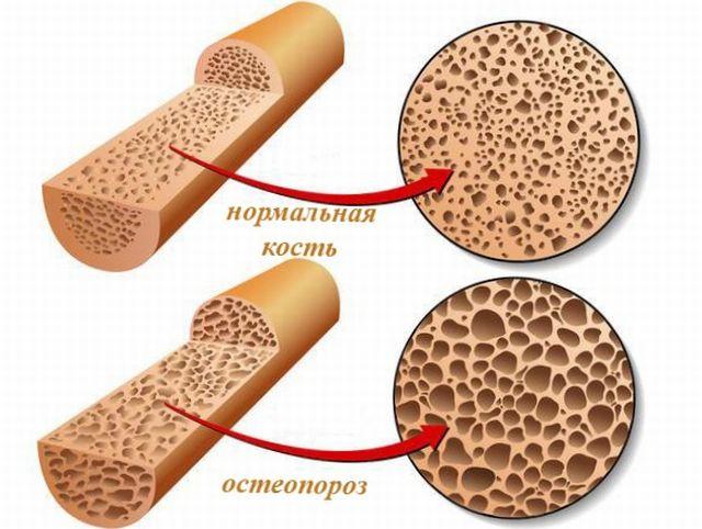 что такое остеопороз