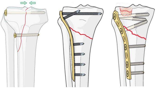 остеосинтез берцовой кости