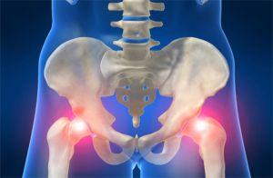 Остеоартроз тазобедренного сустава 3 степени лечение