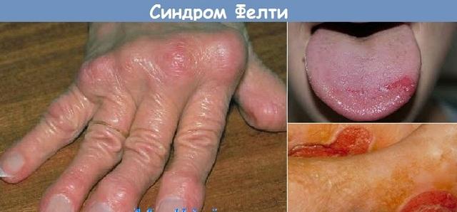 Триада симптомов при синдроме Фелти