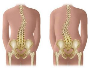 визуальный осмотр спины