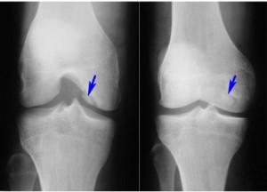 Магнитно резонансная томография колена