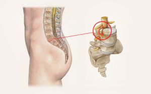 Симптомы протрузии поясничного отдела позвоночника