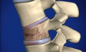 компрессионный перелом позвоночника