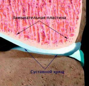 Субхондральная ткань замыкательных пластинок