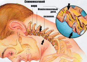 смещение позвонков в шее