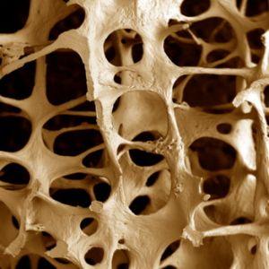 разрушение костной ткани