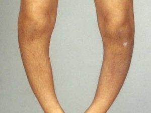 Остеомаляция костей