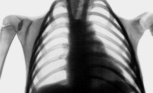 деформация грудной клетки
