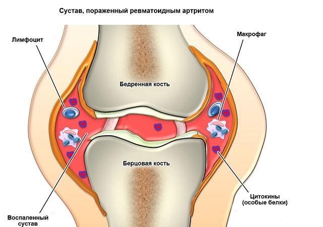 Сустав пораженный ревматоидным артритом