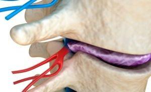 Субхондральный склероз суставных поверхностей