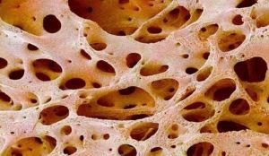 резорбция костей