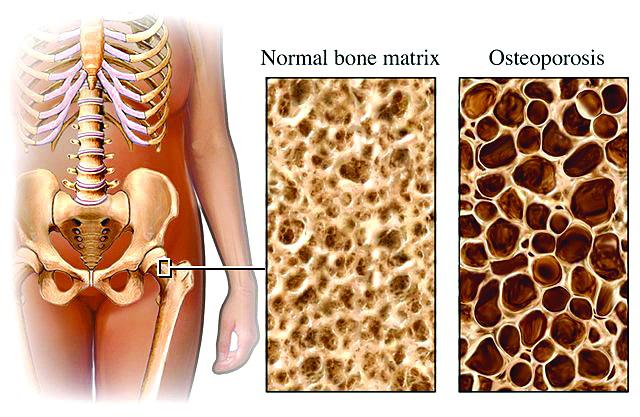 остеопорозные кости