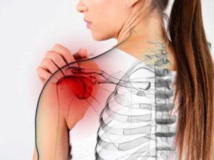 периартрит плечевой