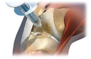 Инъекция в колено