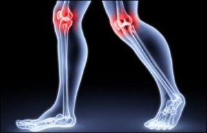 остеоартроз коленей