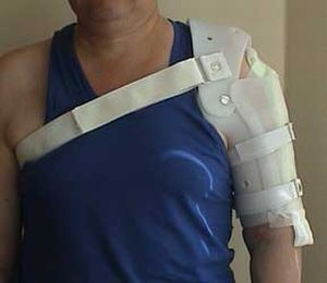 ортез на плечо и предплечье