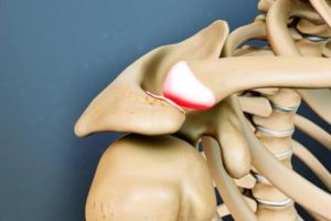 Артроз грудино ключичного сочленения лечение