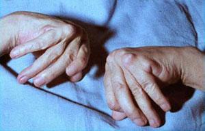 ревматоидный артрит рук