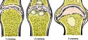 Стадии артроза колена