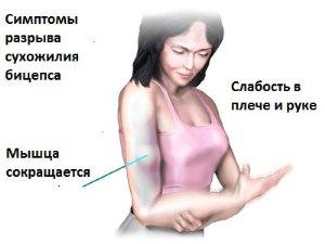 симптомы разрыва сухожильев