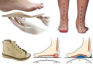 схема примененияортопедической обуви