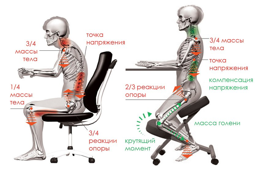 конструктивные особенности коленного стула