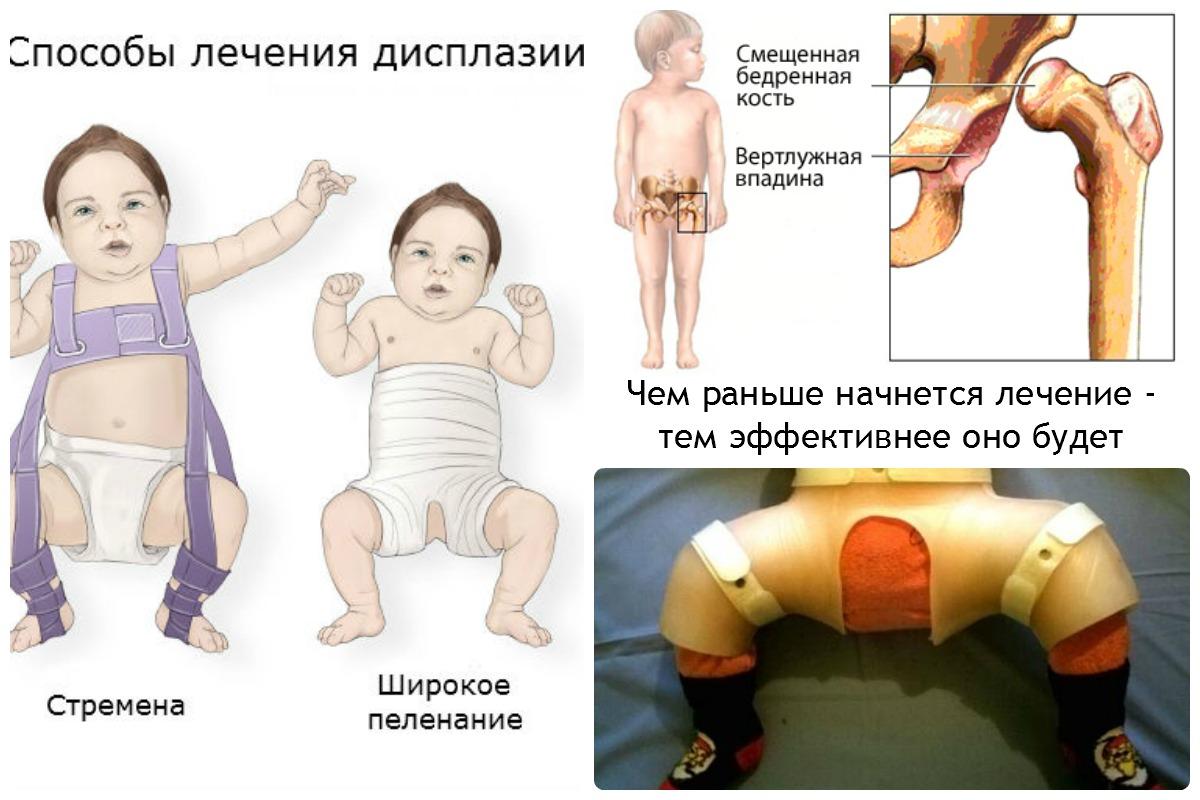 лечение дисплазии у детей