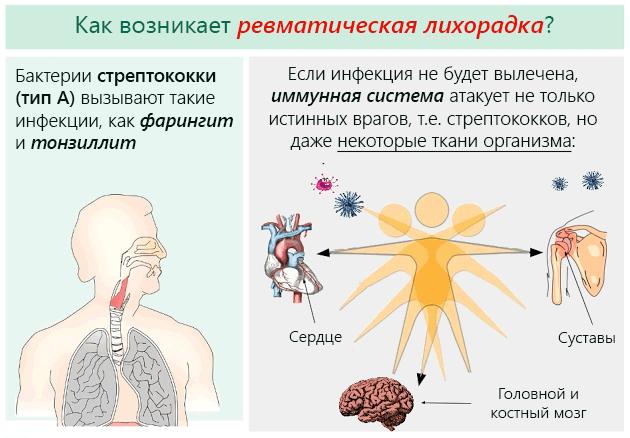 развитие инфекции ревматизма