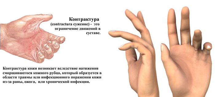 контрактура