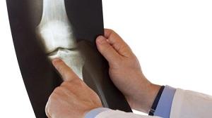 хондроскопия коленного сустава