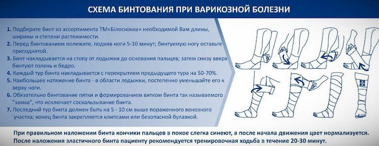 как бинтовать колено при варикозном расширении вен
